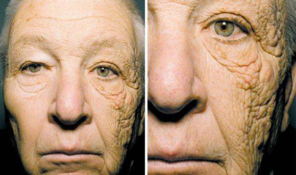 This woman had prolonged sun exposure only on one side of her face. The damage to the skin caused by the UV radiation is very evident.