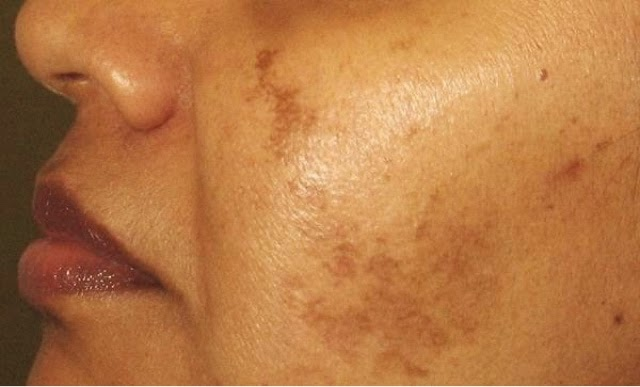 Brown Spts usually develop on the face