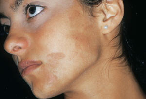 Brown Spots can develop at any age