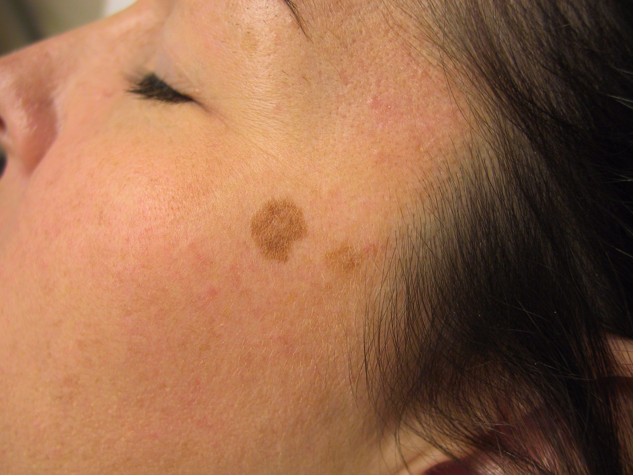 Brown or sun spots also referred to as liver spots.