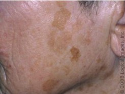 Example of Brown or Sun spots. <a name=