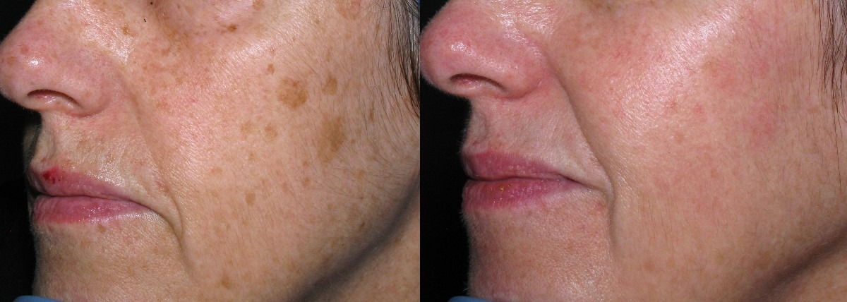 Removing age spots is easier than ever!