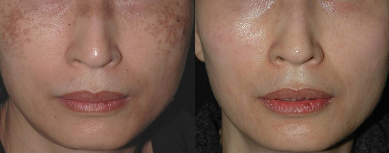 before and after skin resurfacing for Brown Spots Removal