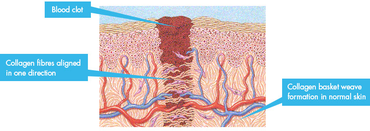 Collagen regeneration process after a wound is inflicted