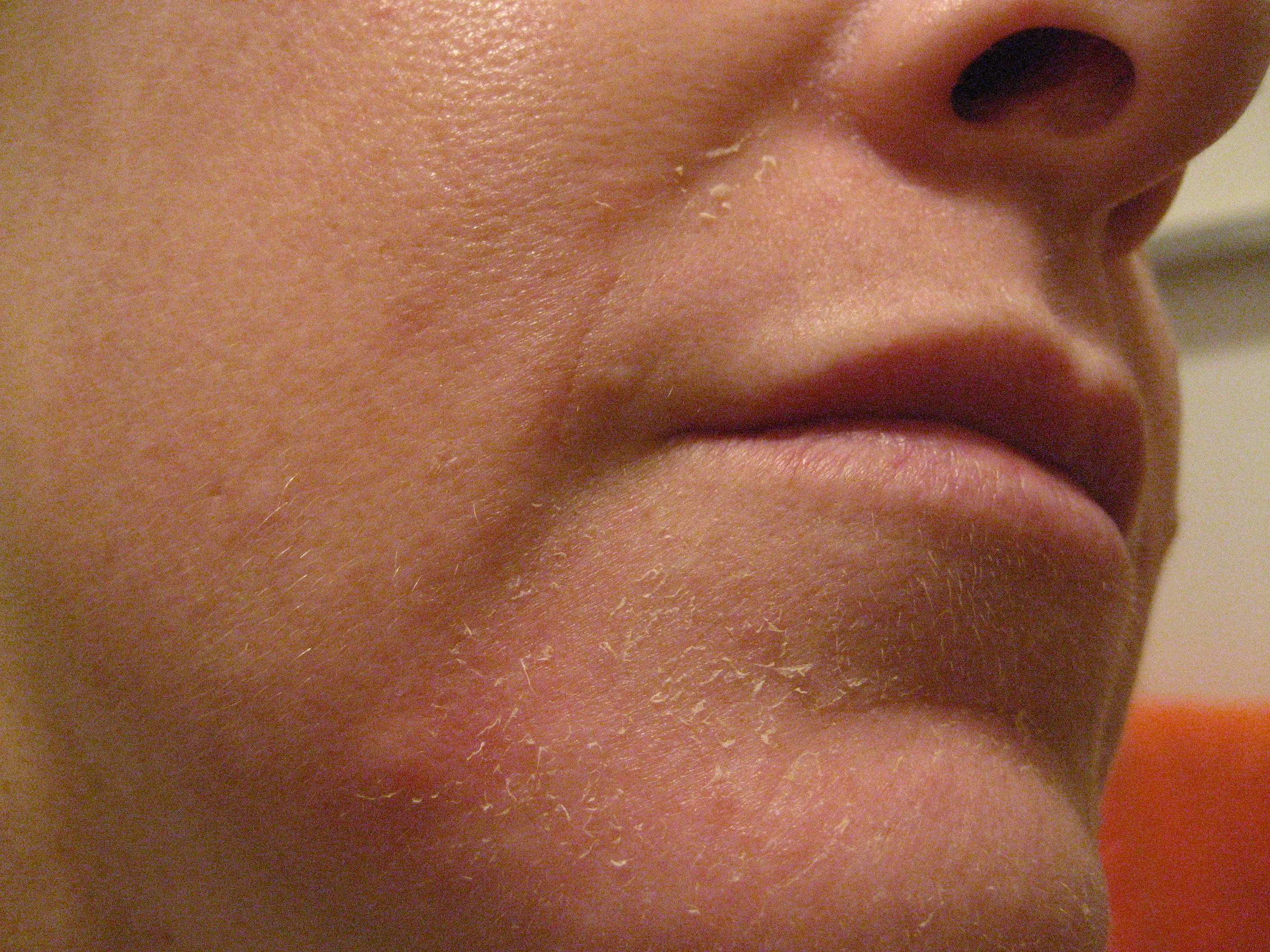 The immediate after effect of tretinoin is a mild flaky peeling.