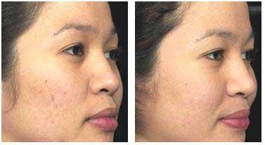 acne scars 2