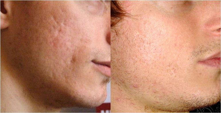 acne scars areton one