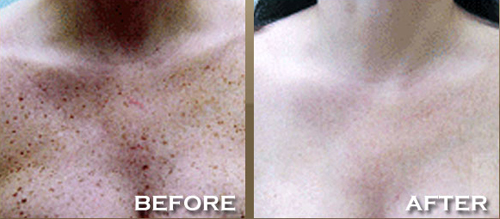 before and after agespots areton