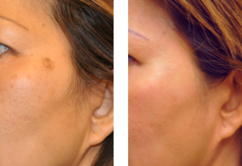Natural Brown Age Spot Removal