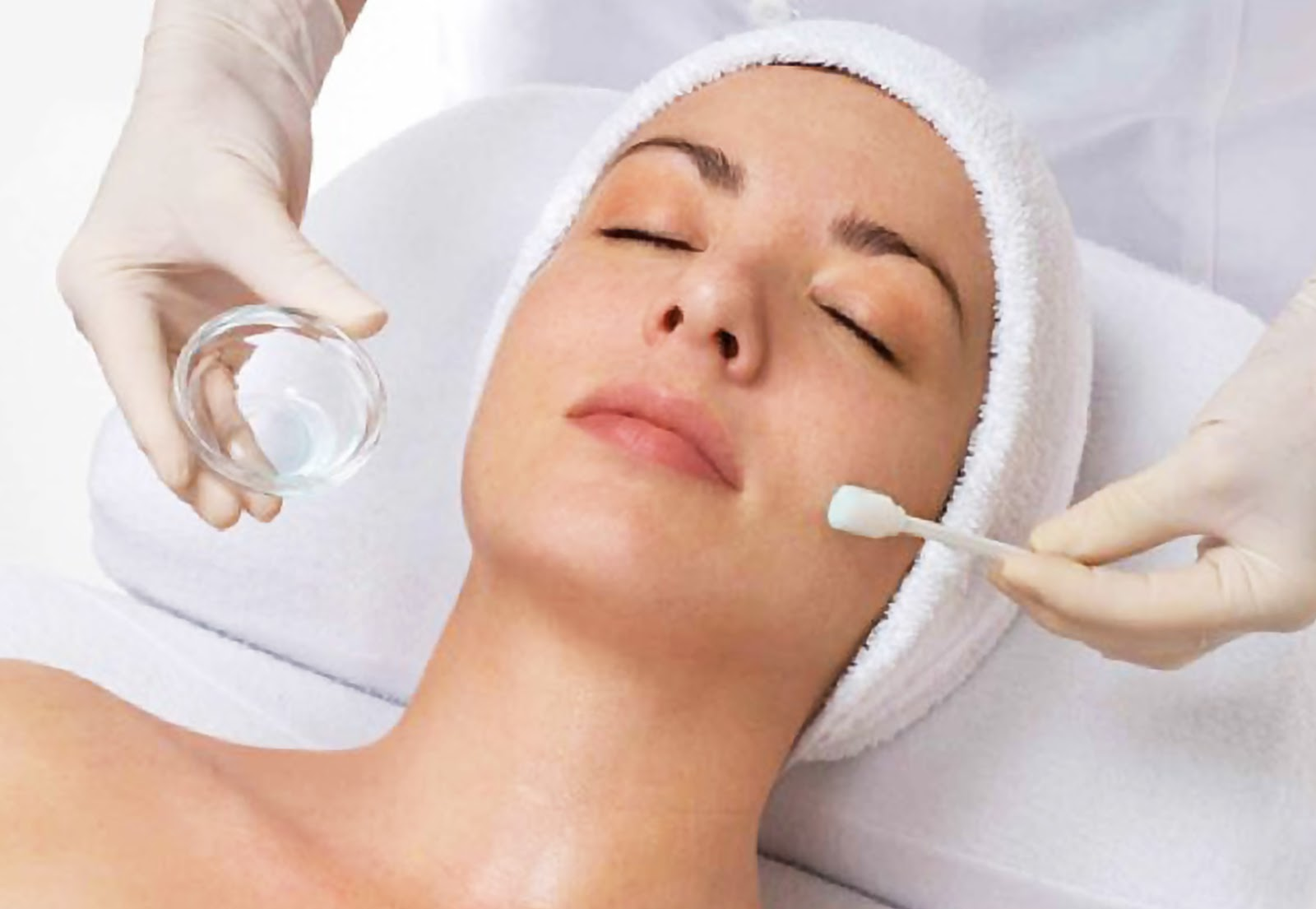 chemical-peel-for acne scars
