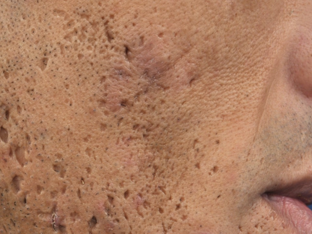 Typical Ice pick type of depressed scar. Minor skin grafting is a very good option for reconstructing the missing skin.