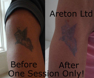 Tattoo Removal After One Session!
