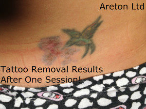 tattoo removal reasults after one session