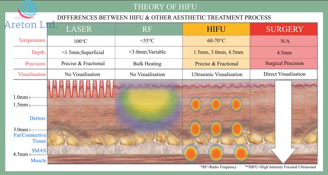 Hifu Theory